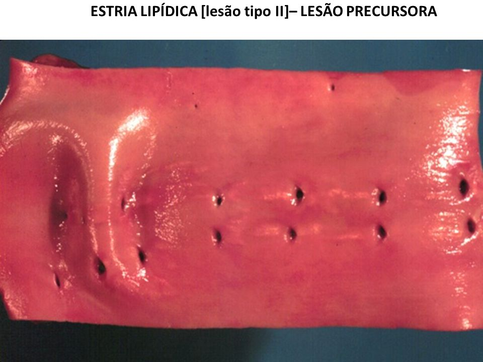 ESTRIA LIPÍDICA [lesão tipo II]– LESÃO PRECURSORA